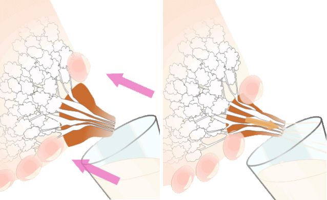 сцеживание руками при лактостазе