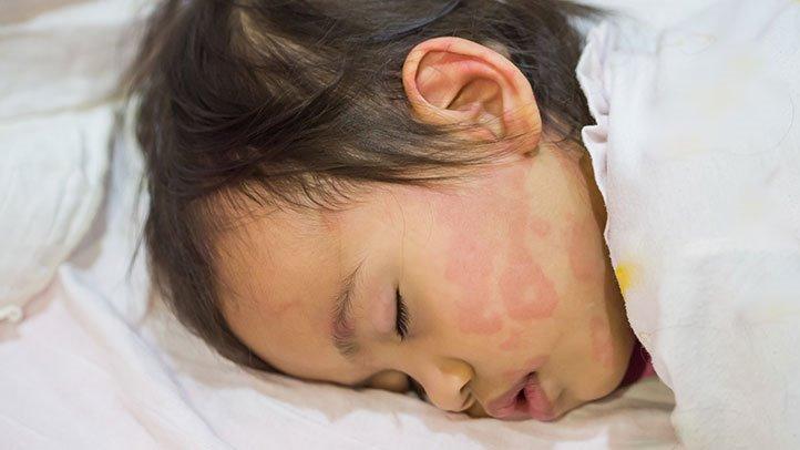 Сыпь у ребенка: крапивница